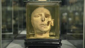 Video   'Het is ook een verhaal van ellende, van verdriet' in Museum Vrolik
